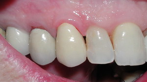 Restoring Teeth Bonded Fillings Crowns Onlays And