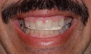 Occlusion And Your Bite Implant Cosmetic Dental Center Gregori